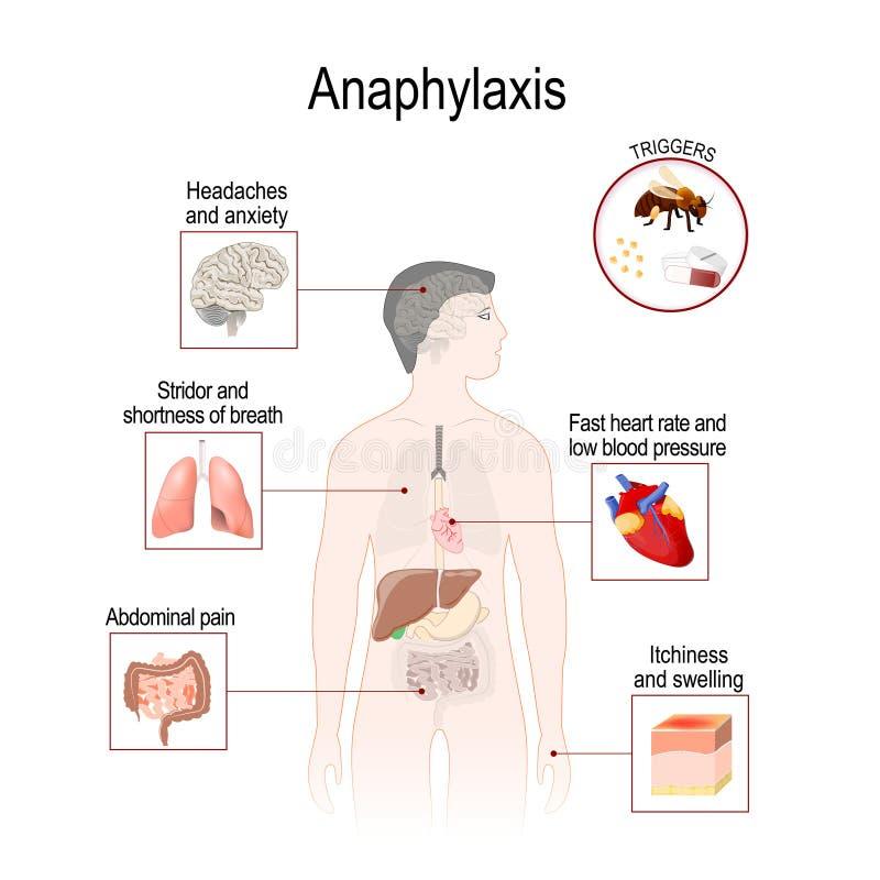 O Anaphylaxis é uma reação alérgica séria que possa causar a morte ilustração royalty free