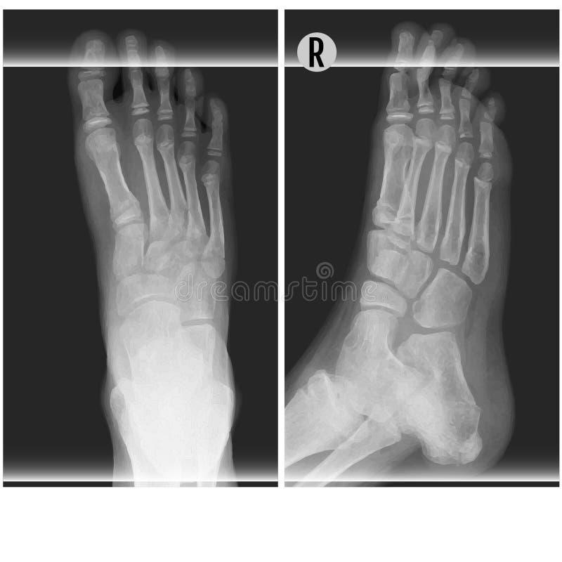 O ankel do pé humano e o raio X do pé vector a ilustração Parte superior e direito ilustração do vetor