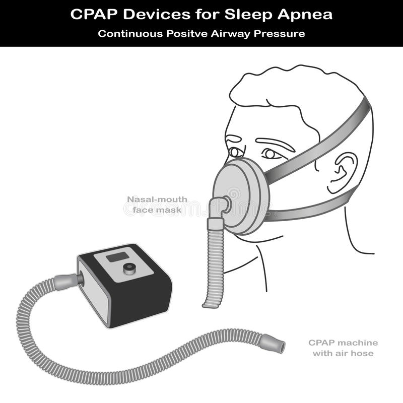 O Apnea de sono, CPAP, nariz - mouth a máscara ilustração stock