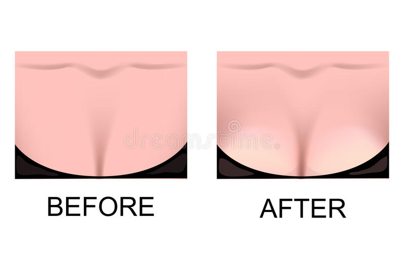 O aumento do peito Cirurgia plástica ilustração stock