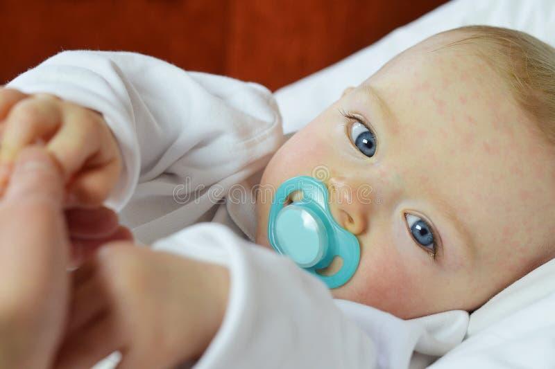 O bebê sofre da sexta doença (uma febre de três dias) fotos de stock royalty free
