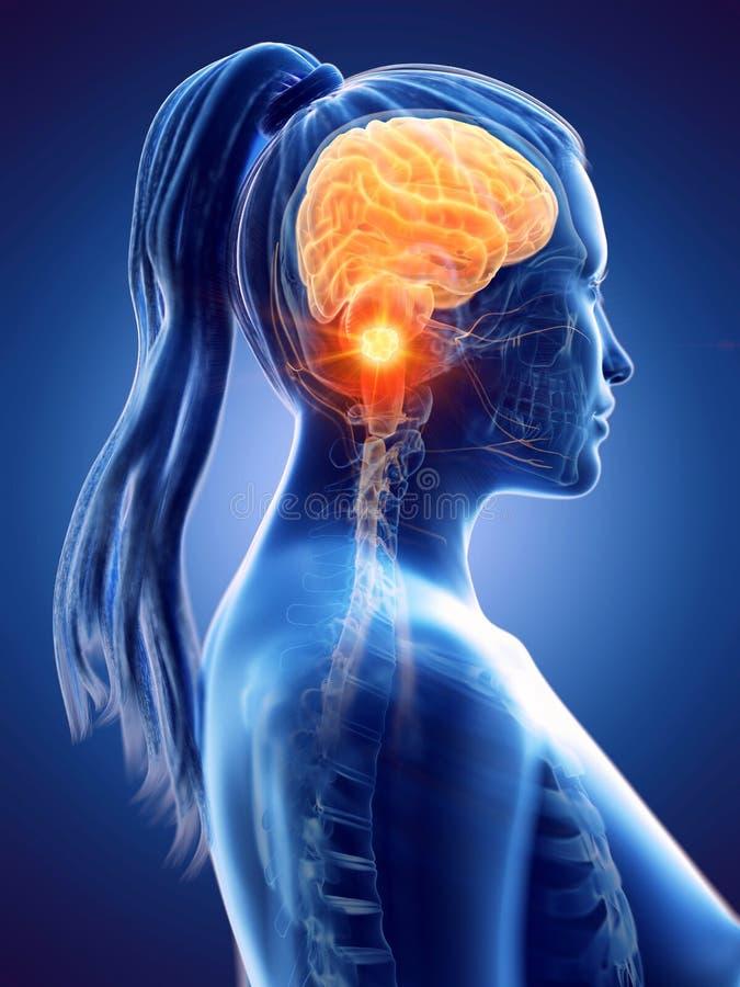 O câncer cerebral de uma mulher ilustração royalty free