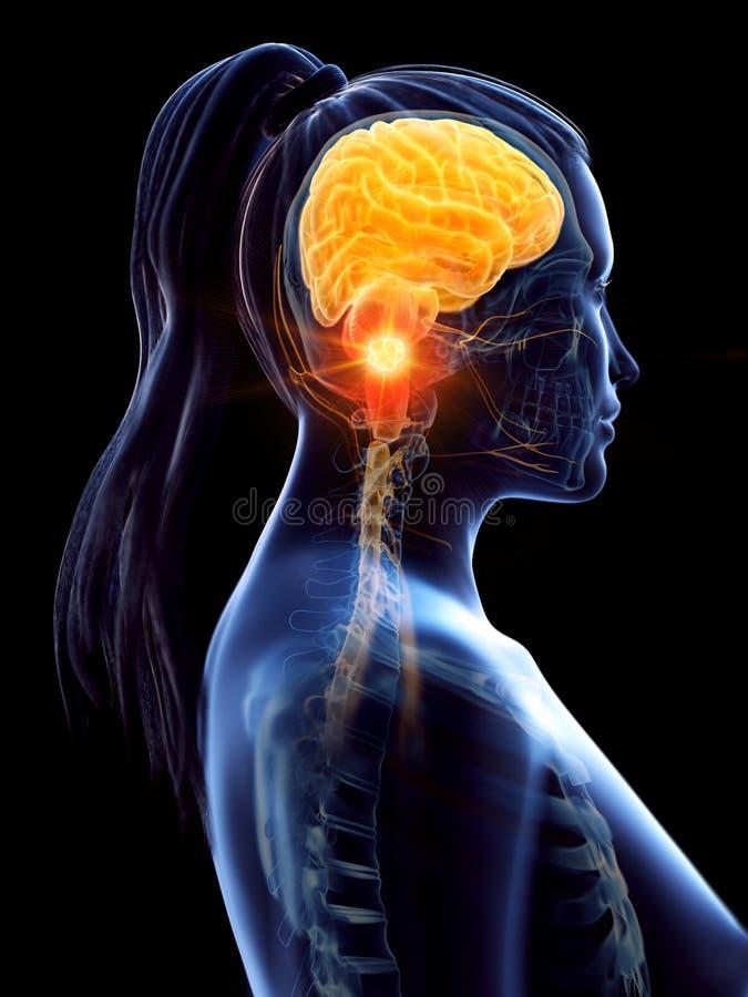 O câncer cerebral de uma mulher ilustração do vetor