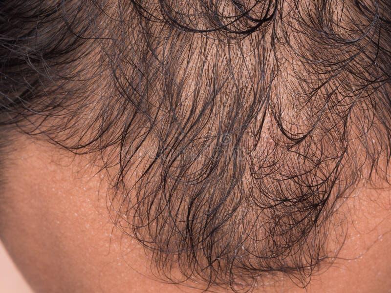 o close up do cabelo perde fotos de stock