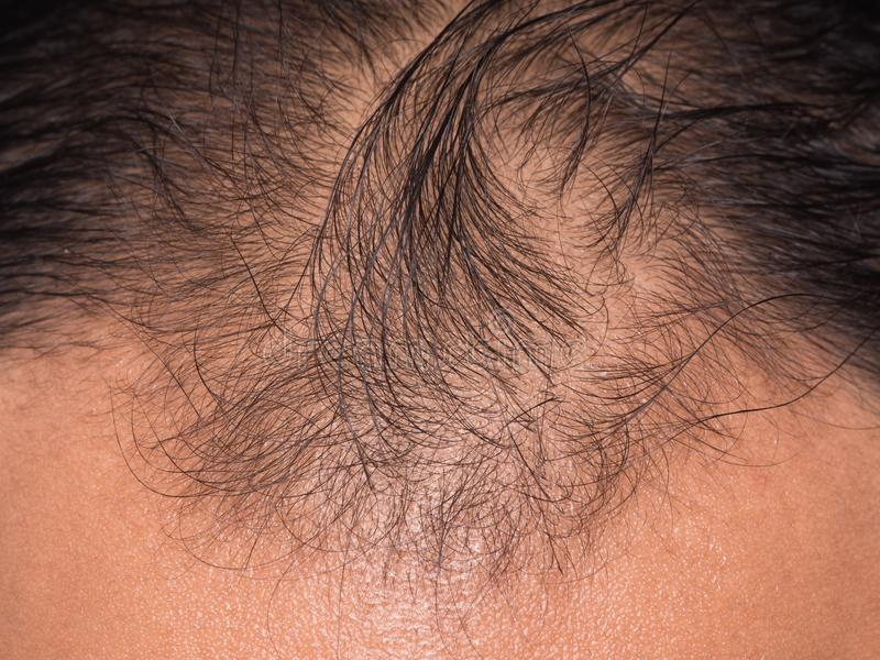 o close up do cabelo perde imagem de stock royalty free