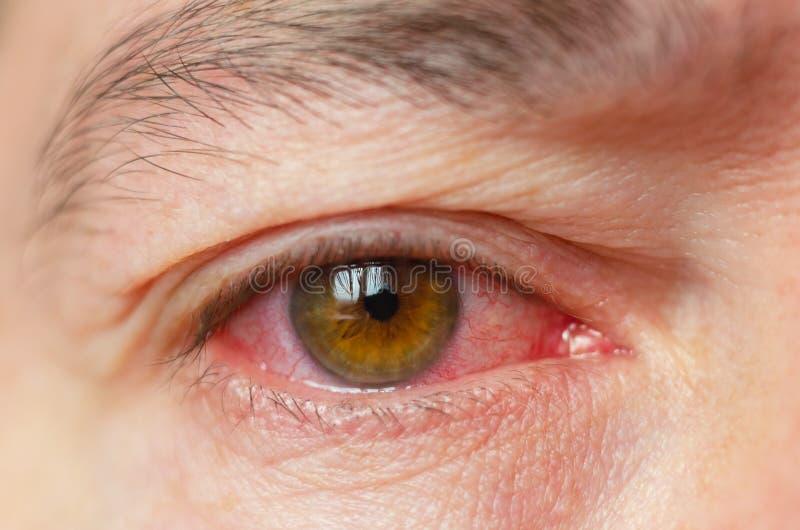 O close up irritou os olhos vermelhos vermelhos contaminados, conjuntivite fotografia de stock royalty free