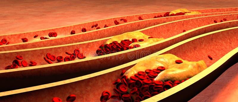 O colesterol obstruiu a artéria, conceito médico ilustração royalty free