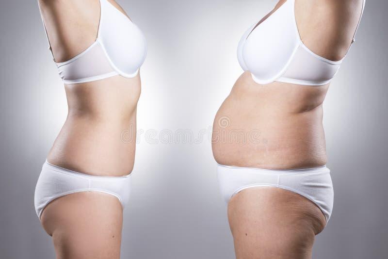 O corpo da mulher antes e depois da perda de peso fotografia de stock royalty free