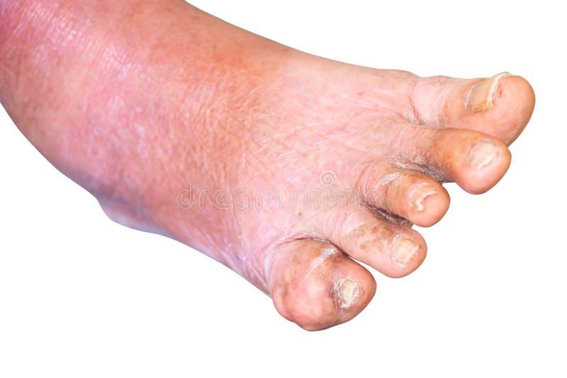 O dedo pequeno do pé da gota em povos envelhecidos fecha-se acima no fundo branco imagem de stock royalty free