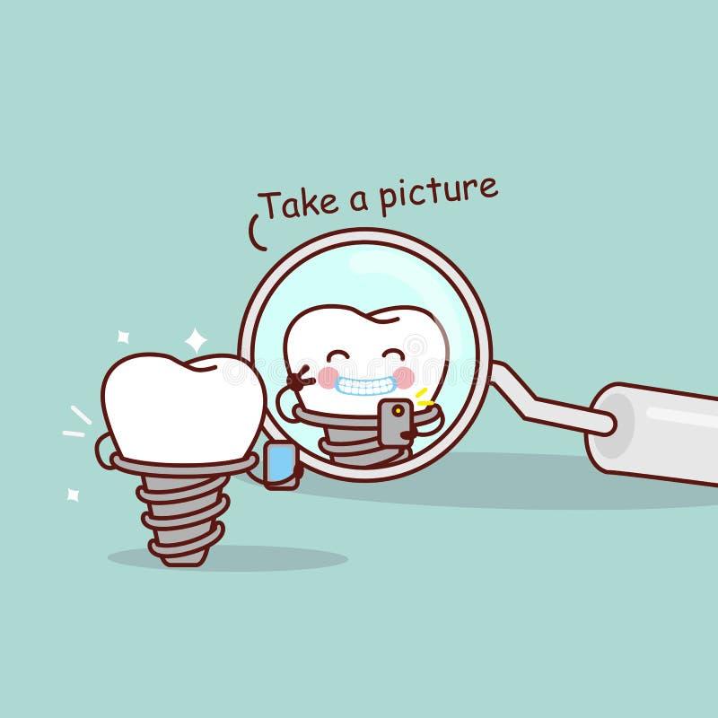 O dente do implante dos desenhos animados toma a imagem ilustração stock
