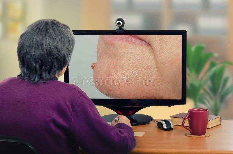 O dermatologista da telemedicina examina a toupeira no queixo imagens de stock