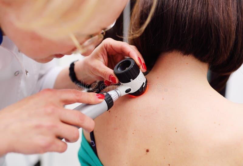 O dermatologista examina as toupeiras ou a acne do paciente com um dermatoscope imagens de stock