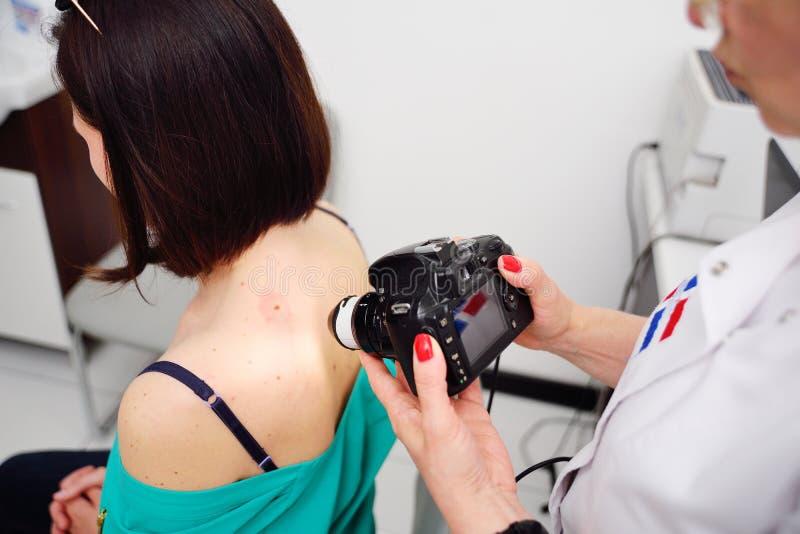 O dermatologista examina as toupeiras ou a acne do paciente com um dermatoscope fotos de stock royalty free
