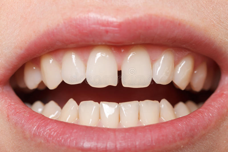 Diastema entre os incisors superiores foto de stock royalty free