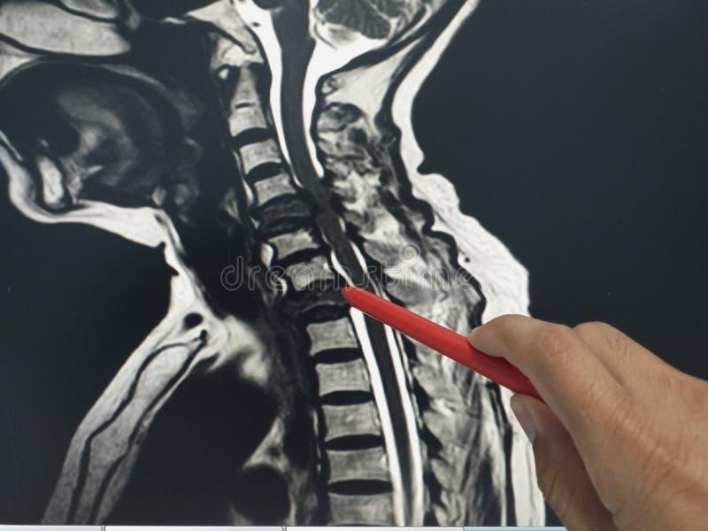 O doutor ascendente pr?ximo da m?o que guarda uma pena vermelha diz ao paciente o exame da c-espinha do mri foto de stock royalty free
