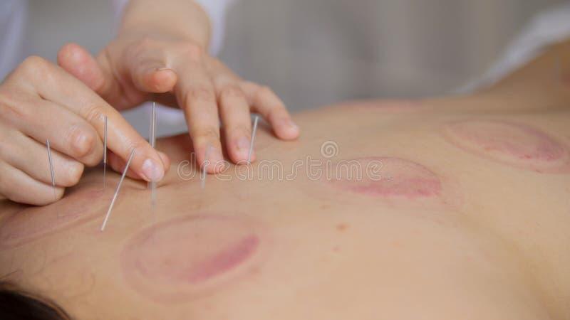 O doutor cola agulhas no corpo do ` s da mulher na acupuntura fotografia de stock