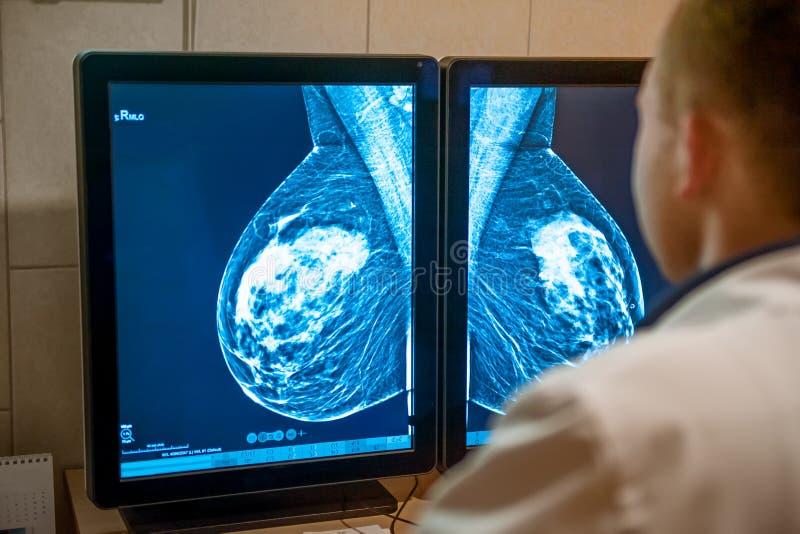 O doutor examina o instantâneo do mamograma do peito do paciente fêmea nos monitores Foco seletivo