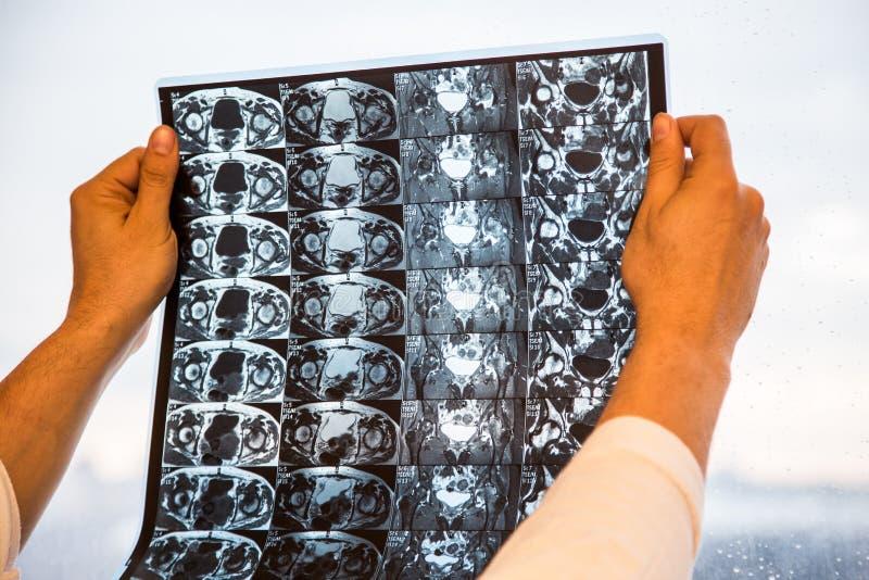 O doutor examina resultados da ressonância magnética MRI da articulação da bacia Foco seletivo fotografia de stock