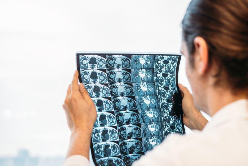 O doutor guarda a varredura de MRI ou o filme de raio X da junção do montão fotos de stock royalty free