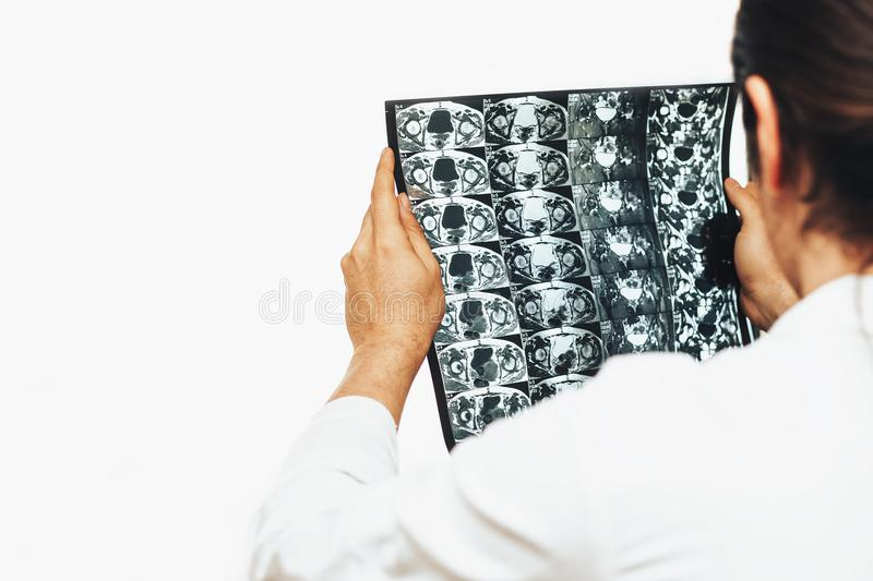O doutor guarda a varredura de MRI ou o filme de raio X da junção do montão em suas mãos foto de stock royalty free