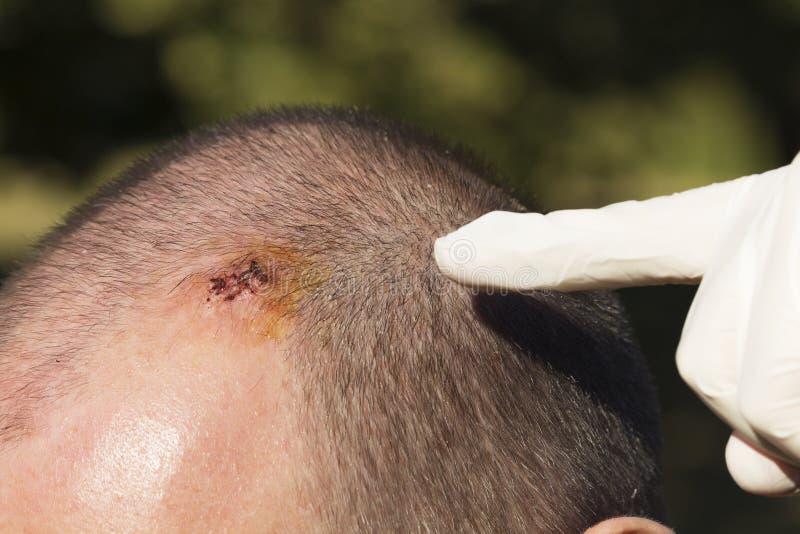 O doutor que aponta na cicatriz após remove os pontos foto de stock royalty free