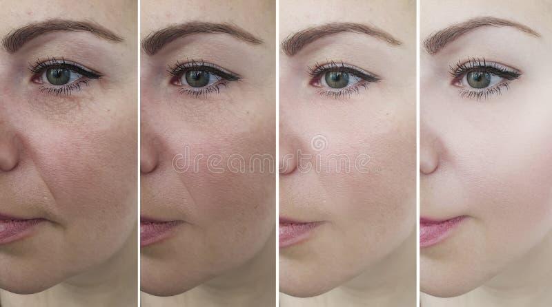 O envelhecimento da remoção da mulher enruga a correção da diferença antes e depois, colagem do esteticista imagens de stock