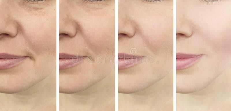 O envelhecimento da remoção da mulher enruga a correção da diferença da regeneração antes e depois, colagem do esteticista imagem de stock