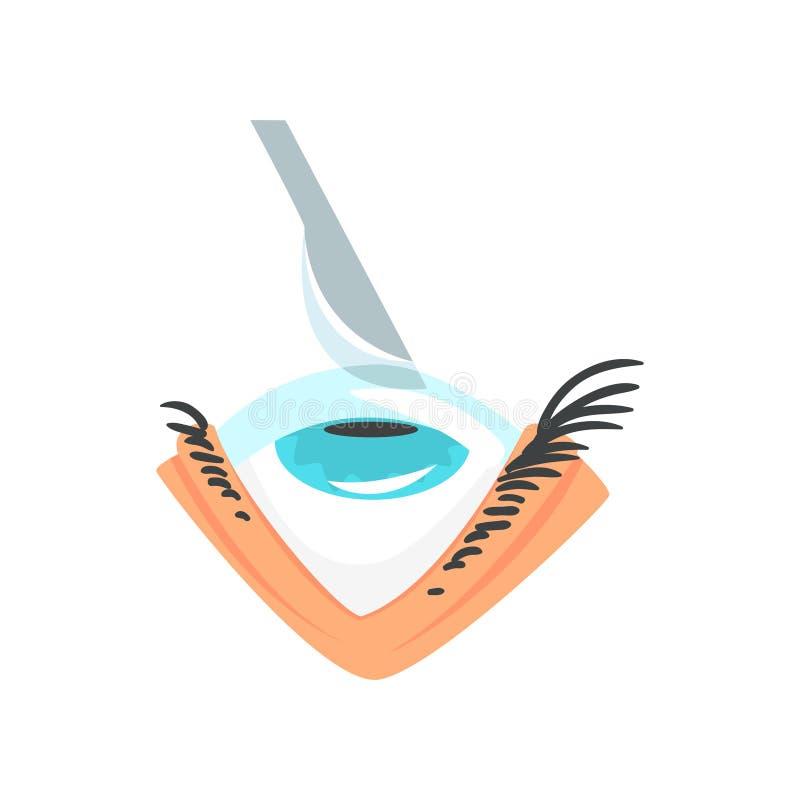 O escalpelo sobre o olho humano, a cirurgia do olho e os desenhos animados da correção da visão vector a ilustração ilustração royalty free