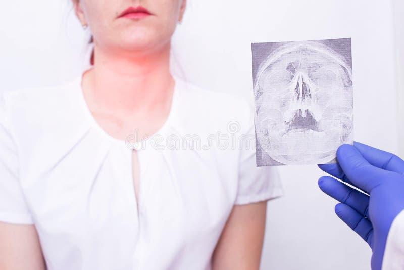 O especialista do doutor guarda a imagem do raio X no fundo de uma moça que tenha a amidalite da garganta e do nasopharynx, imagem de stock royalty free