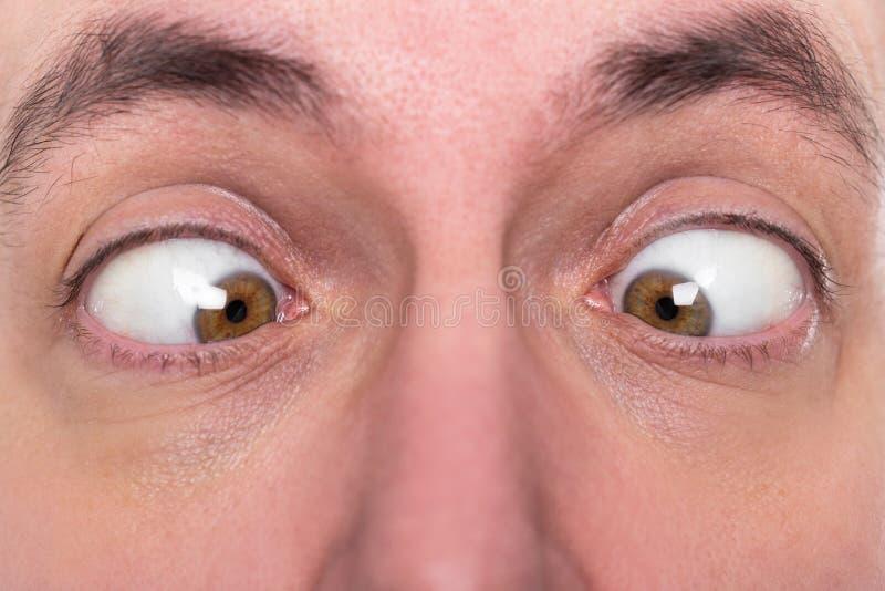 O homem está sendo vesgo, close up, estrabismo do conceito imagens de stock