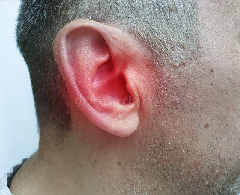 O homem fere sua orelha um pressureof do sintoma a doença da doença foto de stock