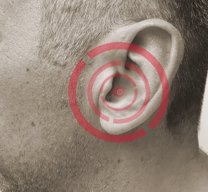 O homem fere sua orelha um sintoma da doença da doença imagem de stock royalty free