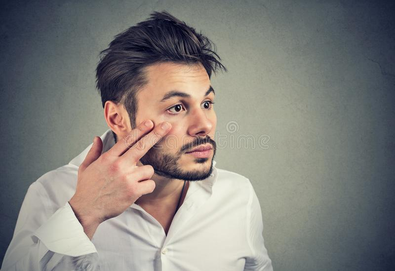 O homem que puxa abaixo da pálpebra que verifica seu olho que olha no mirrow sente indisposto fotos de stock