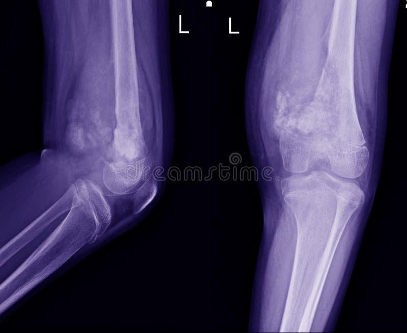 O joelho do raio X junta-se a mostrar o grande lesuion osteolytic do aspecto central do fêmur longe do ponto de origem esquerdo c fotos de stock royalty free