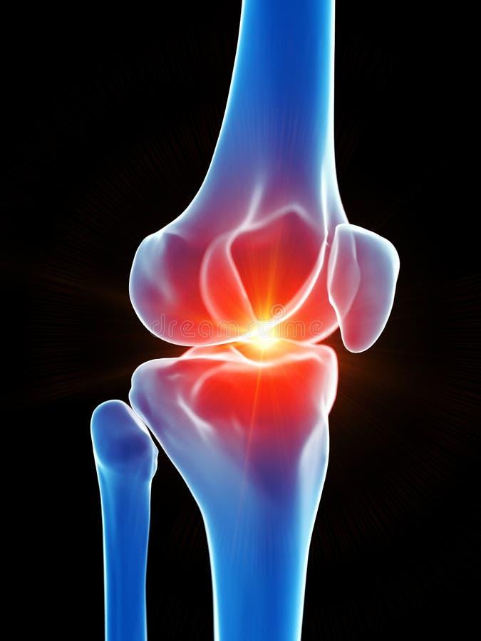 O joelho que mostra a dor ilustração stock