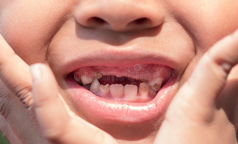 O menino com os dentes de bebê deteriorados imagem de stock