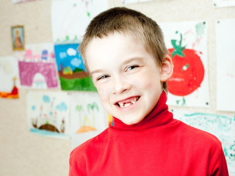 O menino mostra os dentes faltantes fotografia de stock royalty free