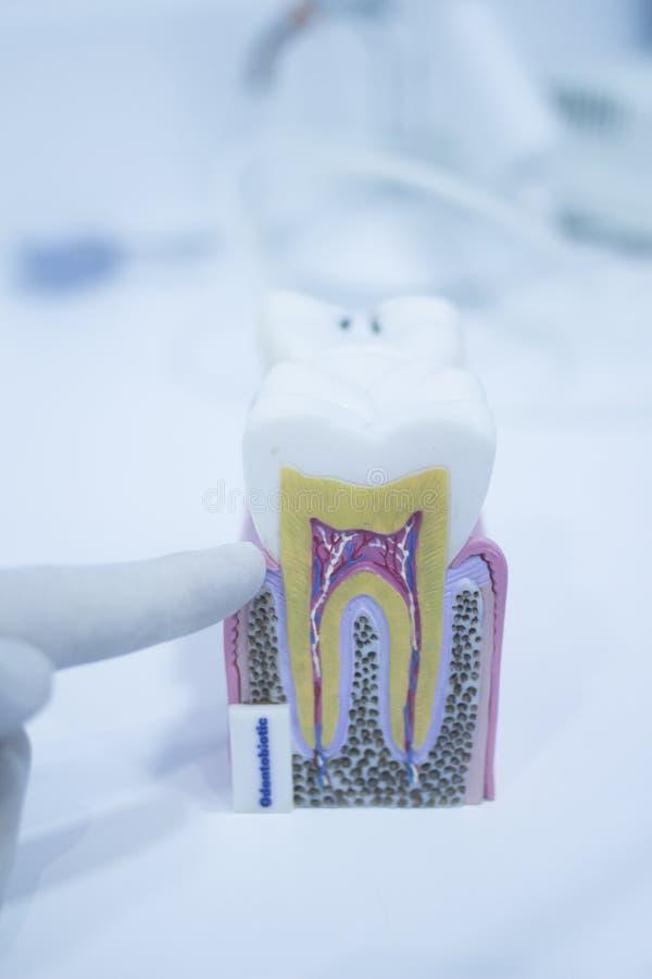 O modelo dental do dente moldou mostrar raizes do esmalte da deterioração fotos de stock