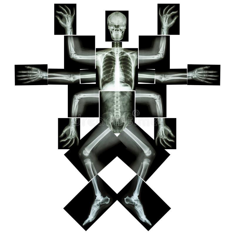 O monstro manda muitos armar-se (Corpo inteiro do raio X: abdom principal da espinha do coração do pulmão do reforço do tórax do  ilustração stock