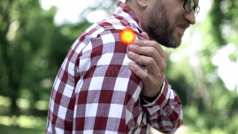 O ombro masculino fere, a osteodistrofia, problema com junções, ponto indica a dor fotografia de stock