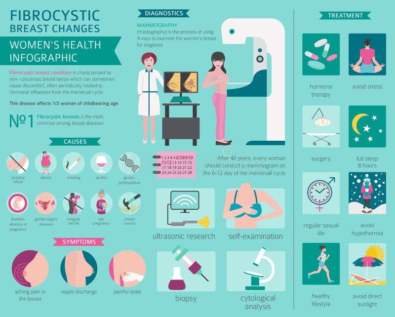 O peito Fibrocystic muda a doença, infographic médico Diagnos ilustração royalty free