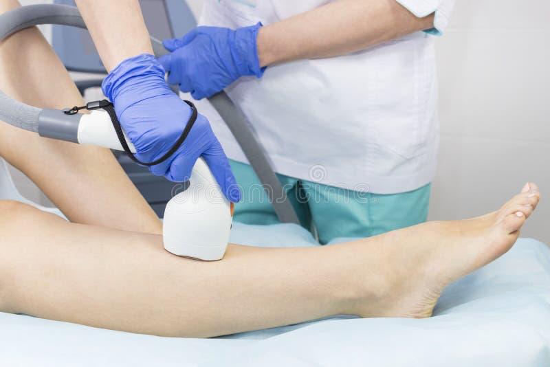 O processo de depilação do laser dos membros fêmeas fotografia de stock royalty free