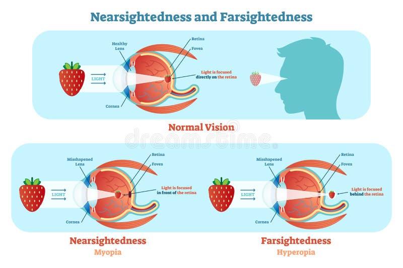 O Sightedness distante e o Sightedness próximo vector o diagrama da ilustração, esquema anatômico ilustração royalty free