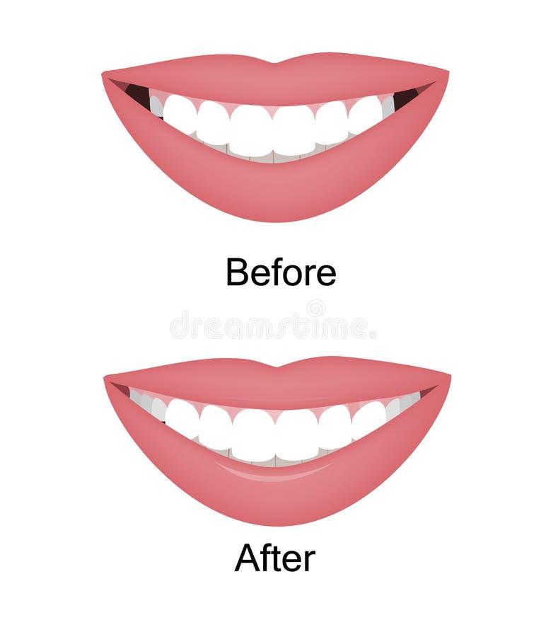 O sorriso com o grande e corredor oral escuro antes e depois da correção Ilustra??o do vetor Espaços escuros na borda ilustração do vetor