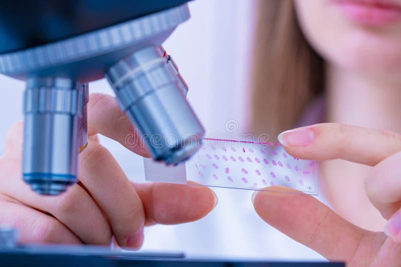 O técnico da jovem mulher está examinando uma amostra histológica, uma biópsia no laboratório da investigação do câncer fotos de stock