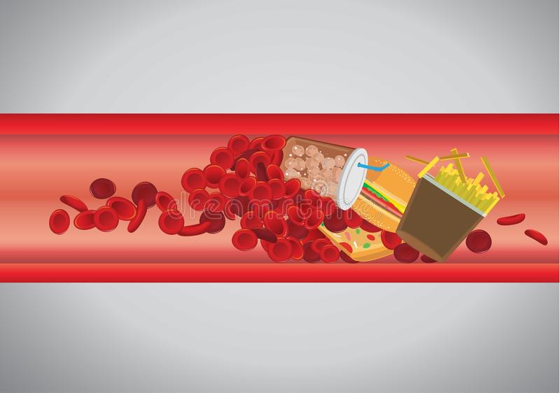 O vaso sanguíneo é obstruído pelo Hamburger e pelo fast food ilustração do vetor
