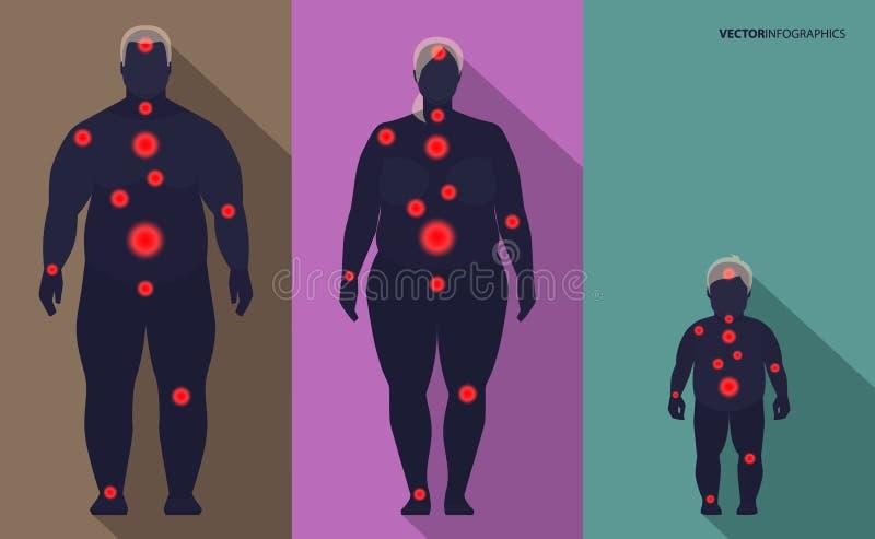Obésité de famille, points de douleur, vecteur illustration stock