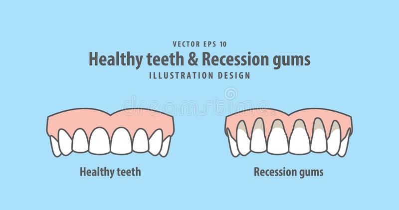 Obere gesunde Zähne u. Rezession gummiert Illustrationsvektor lizenzfreie abbildung
