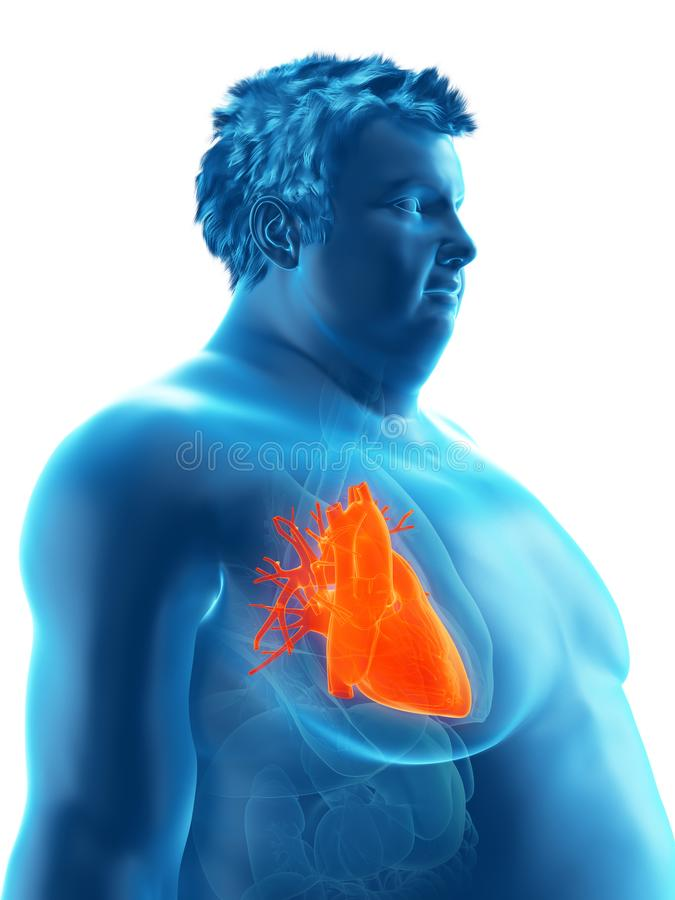 An obese mans heart. 3d rendered medically accurate illustration of an obese mans heart stock illustration