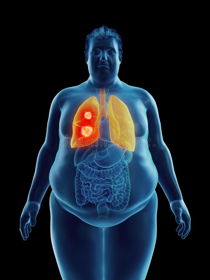 An obese mans lung tumor. 3d rendered medically accurate illustration of an obese mans lung tumor royalty free illustration
